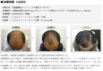 銀クリ治療結果5